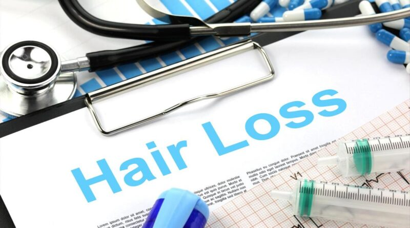 What You Can Do About Male Pattern Baldness And Hair Loss